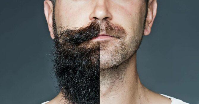 Minoxidil Para Barba: Tenha A Barba Dos Seus Sonhos