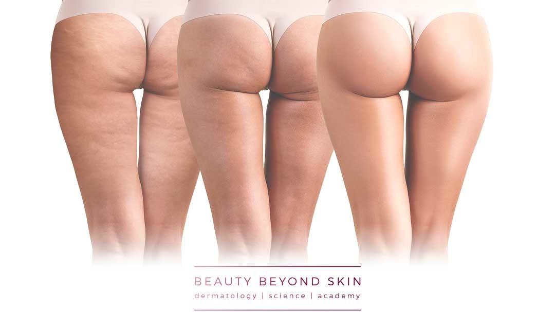 Cuidados Com Celulite Beauty Beyond Skin Dermatologia 1080×608