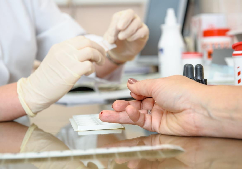 Vírus HIV: Quais São Os Sintomas Da Contaminação E Como é O Exame?