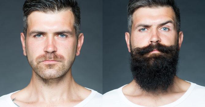 Guia Básico Sobre Minoxidil: Seis Fatos Sobre Esse Tratamento Para Crescer Barba