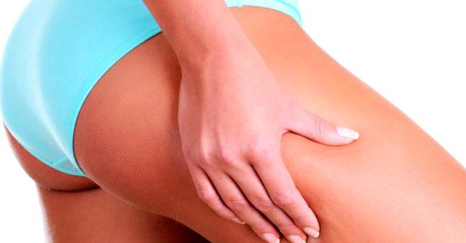 5 Exercícios Para Combater A Celulite