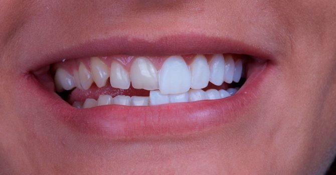 Facetas De Porcelana Deixam O Sorriso Mais Bonito
