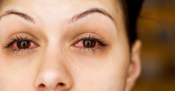 Secreção No Olho: Quando Se Preocupar?