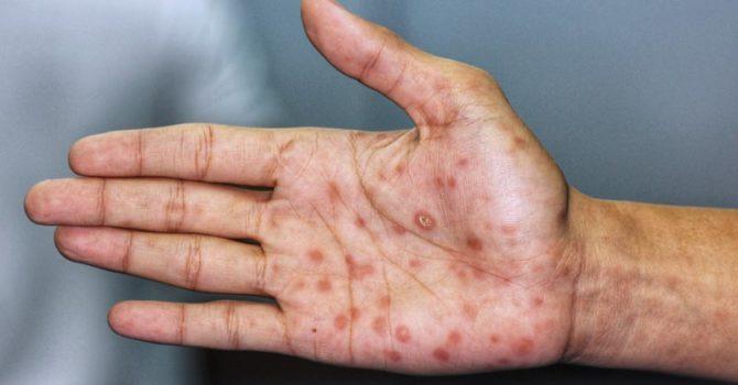 Conheça Os Quatro Estágios Da Sífilis