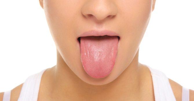 4 Doenças Que Acometem A Língua