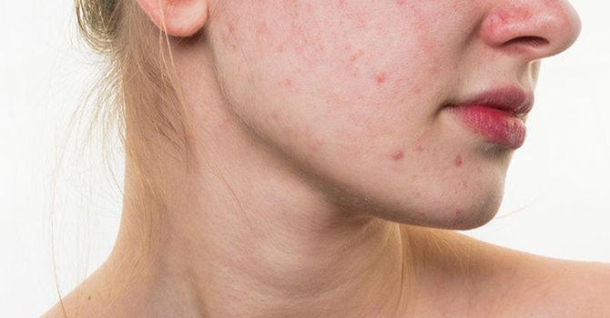 Acne Grau 1: Saiba Identificar O Estágio Menos Severo Da Doença