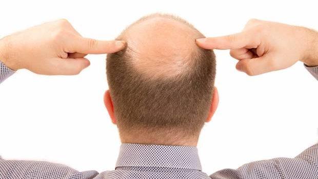 Calvície: Como Cuidar Do Couro Cabeludo Sem Cabelos?