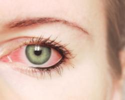 Derrame No Olho: Conheça As Causas