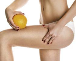 Esclareça Nove Dúvidas Sobre A Celulite