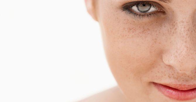 Manchas Na Pele Da Mulher São Mais Comuns Após Os 30 Anos