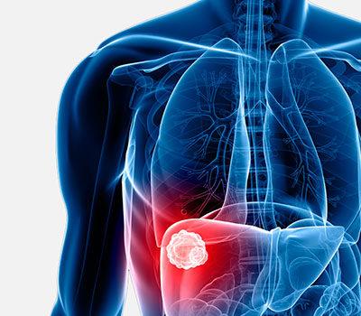 Gordura No Fígado Pode Evoluir Para Complicações Graves