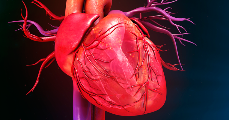 Isquemia Cardiaca