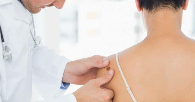 Descubra Quais São As 5 Doenças De Pele Mais Comuns