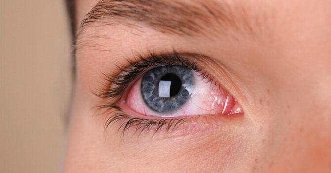 Conheça As Principais Causas Do Olho Vermelho