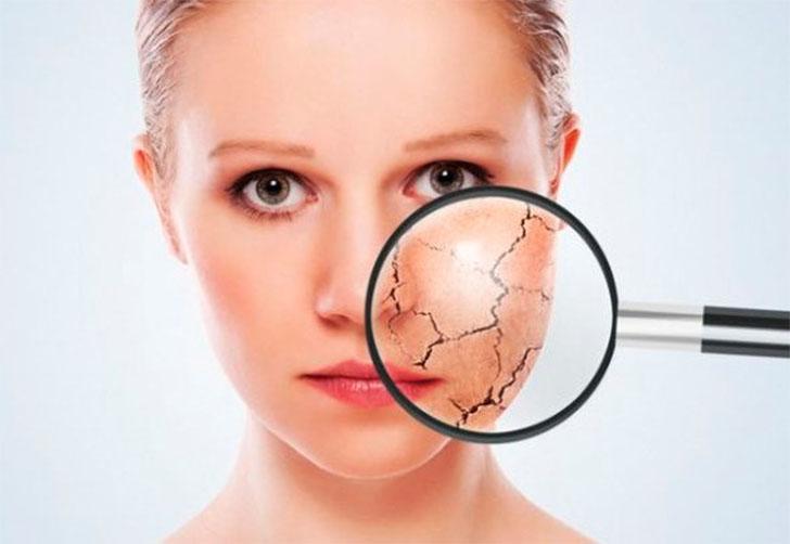 5 Benefícios Do óleo De Rosa Mosqueta