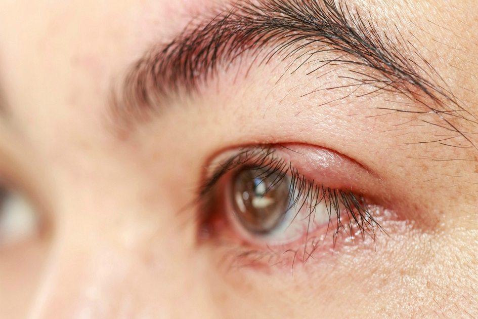 Doenca Olhos