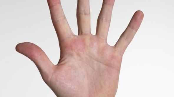 Esclerodermia: O Que é, E Quais Suas Causas E Sintomas?