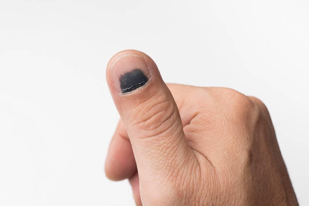 Manchas Escuras Nas Unhas Pode Significar Hematomas Ou Mesmo Tumores