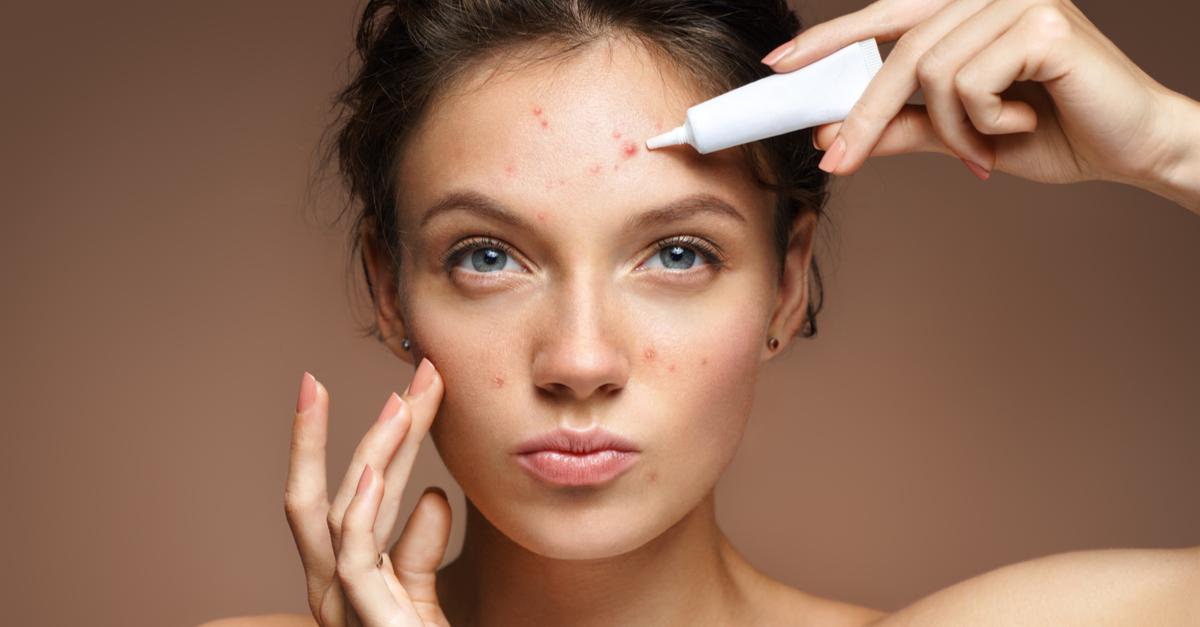 Unicpharma Indica: 5 Produtos Para Tratar Acne