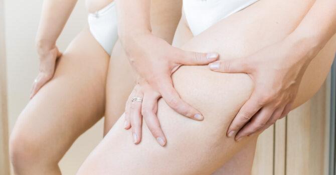 Quais São As Principais Causas Da Celulite?