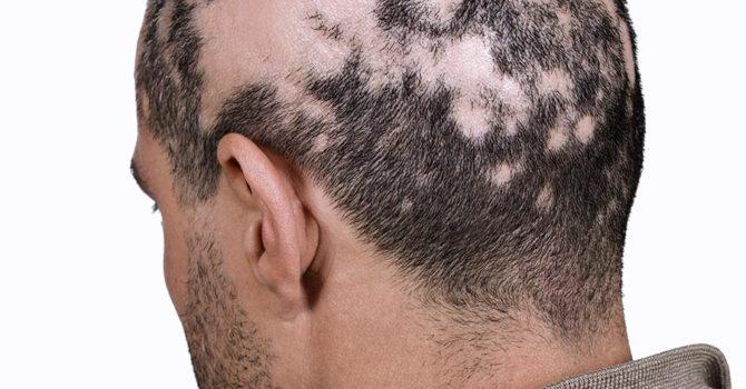 Alopecia: Entenda As Falhas No Cabelo