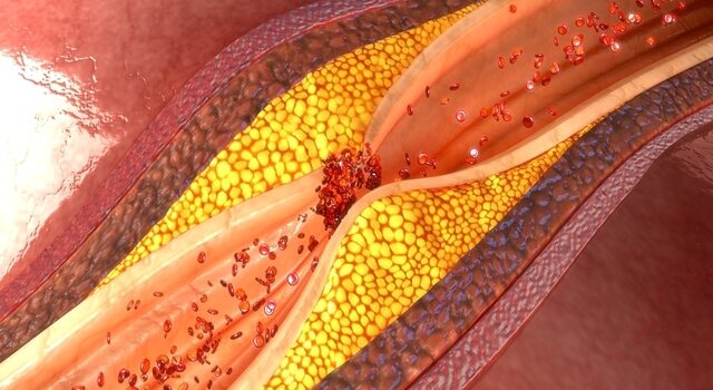 O Que é Aterosclerose? Causas, Sintomas E Como Evitar