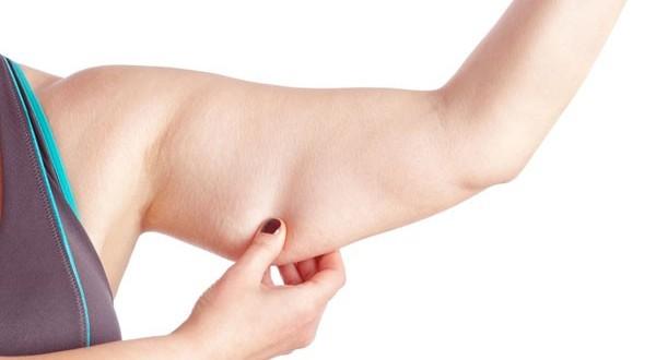 Gordura No Braço Acontece Mais Com Mulheres?
